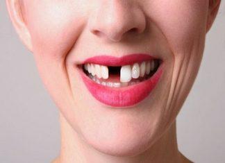 ý nghĩa giấc mơ thấy răng rụng